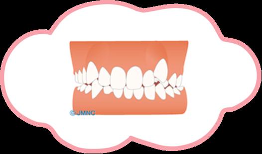 八重歯(やえば)